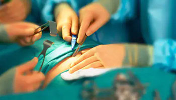 INTERNATIONAL CONFERENCE ON SURGERY & ANESTHESIA